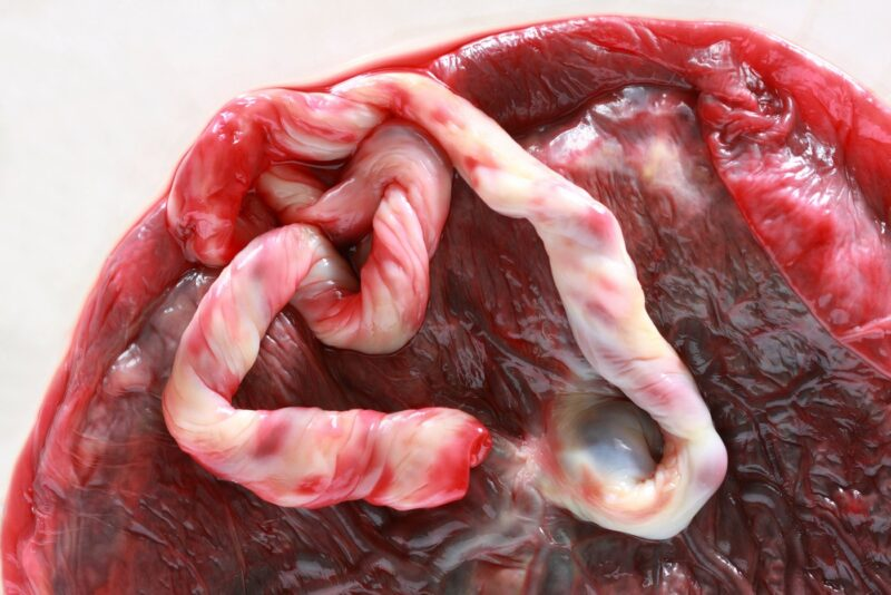 Eat your placenta after birth: Would you, should you?